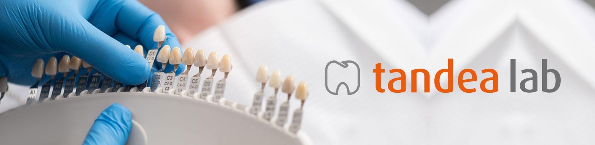 Tandtekniker stockholm