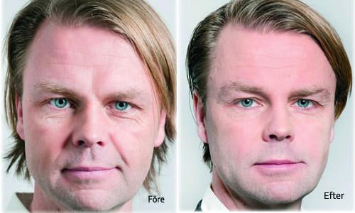Manligt ansikt före och efter behandling med Stylage fillers