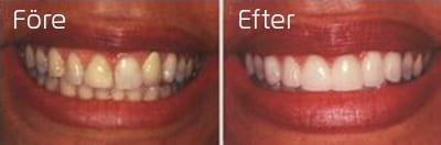 Före och efter porslinsfasader i överkäksfronten