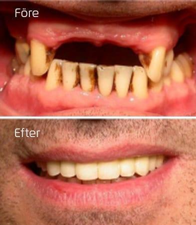 Före och efter implantat hel överkäke