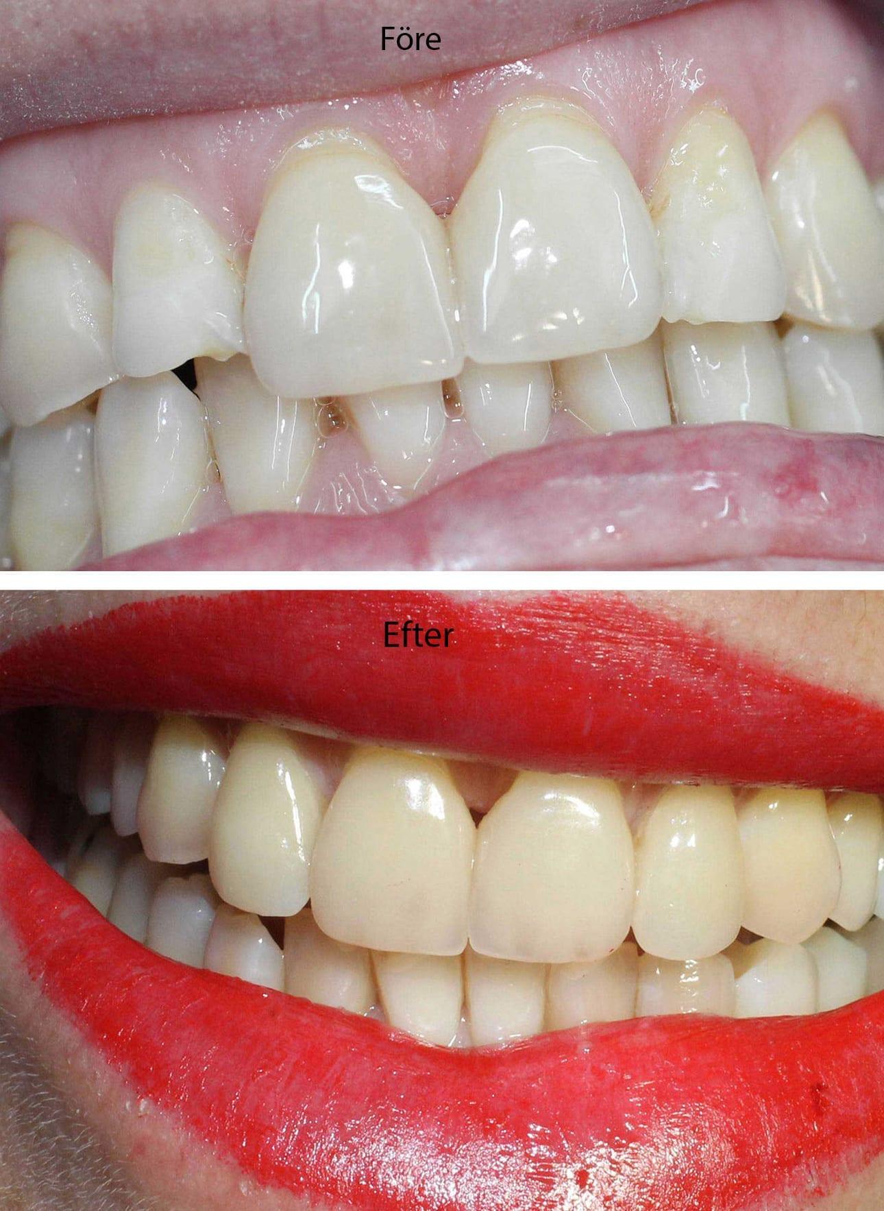 Före och efter porslinsfasader på två sidotänder (lateraler) i överkäken