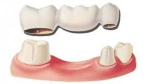 illustration på tandbrygga
